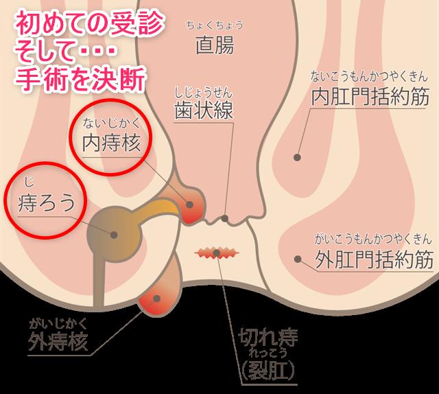 痔診断から手術決意イメージ